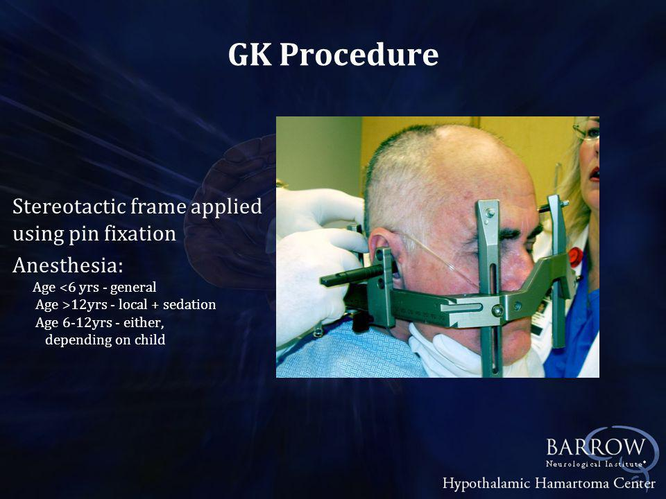 vs Endoscopic Resection vs Laser Thermoablation Latency GK - Requires 1-3 yrs to see full effect.