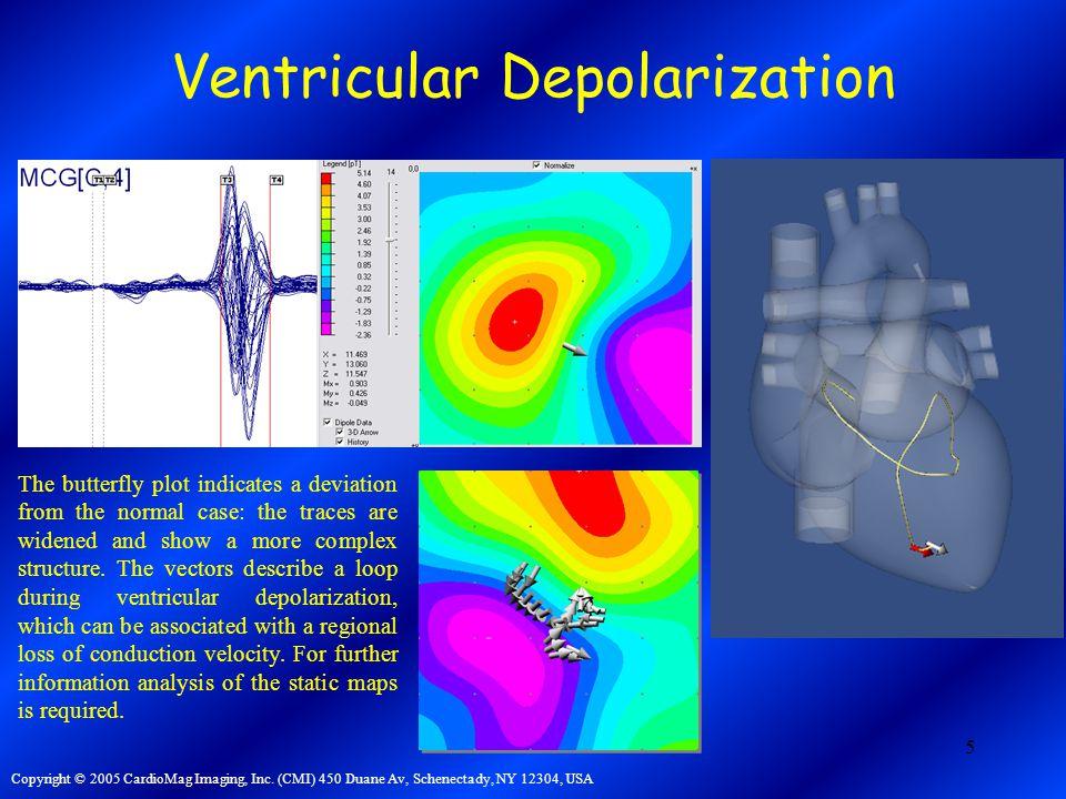5 Ventricular Depolarization Copyright © 2005 CardioMag Imaging, Inc.