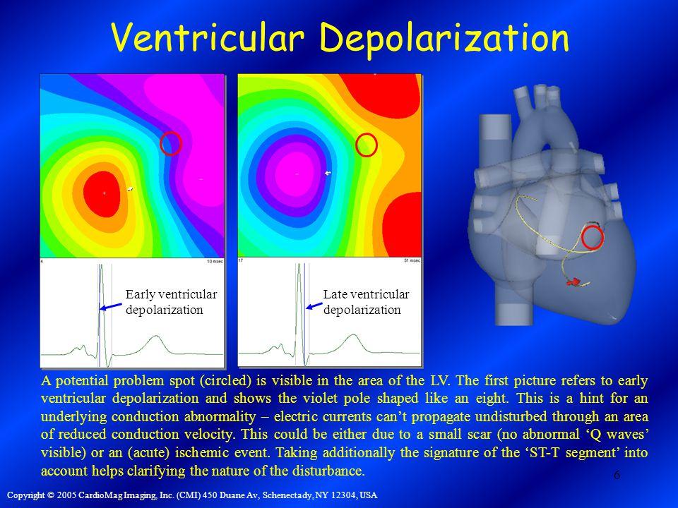 6 Ventricular Depolarization Copyright © 2005 CardioMag Imaging, Inc.