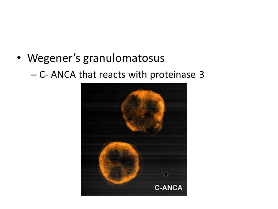 Wegener's granulomatosus – C- ANCA that reacts with proteinase 3