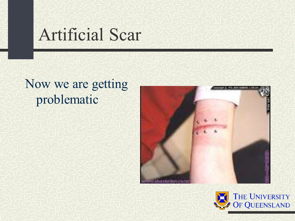 Artificial Scar Now we are getting problematic