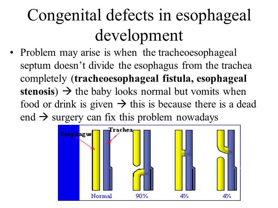 Congenital defects in esophageal development Problem may arise is when the tracheoesophageal septum doesn't divide the esophagus from the trachea completely (tracheoesophageal fistula, esophageal stenosis)  the baby looks normal but vomits when food or drink is given  this is because there is a dead end  surgery can fix this problem nowadays