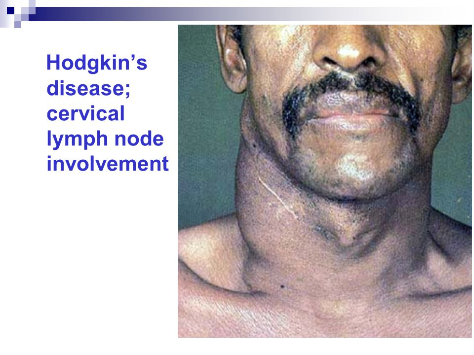 Hodgkin's disease; cervical lymph node involvement