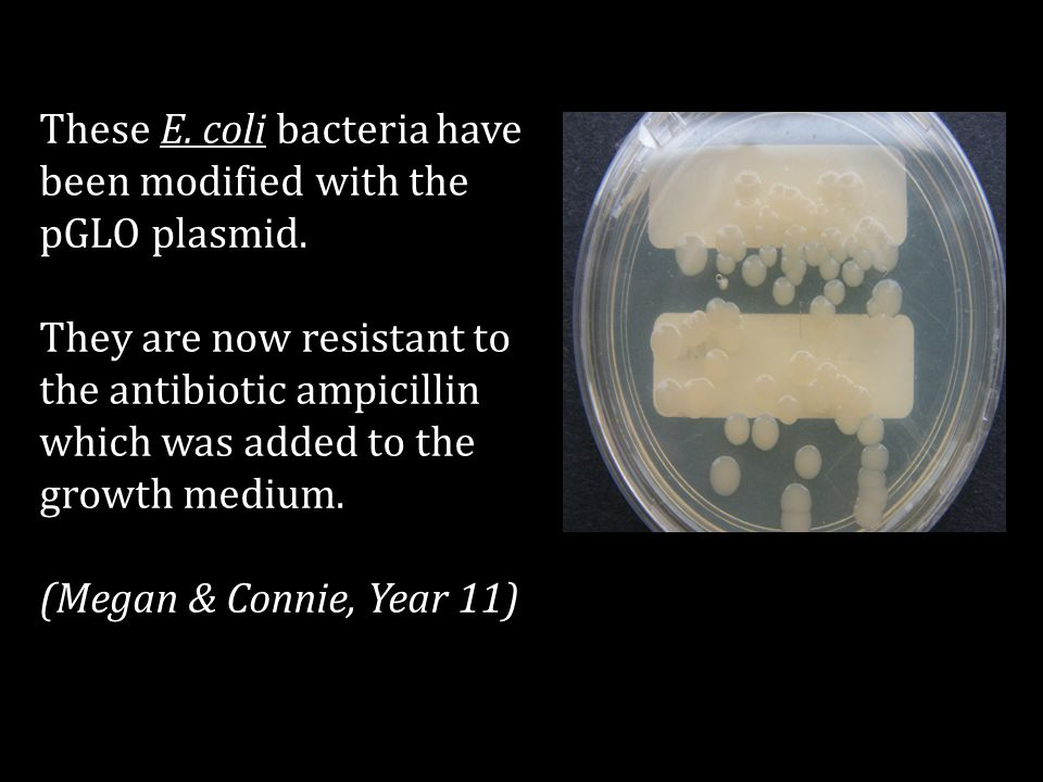 These E. coli bacteria have been modified with the pGLO plasmid.