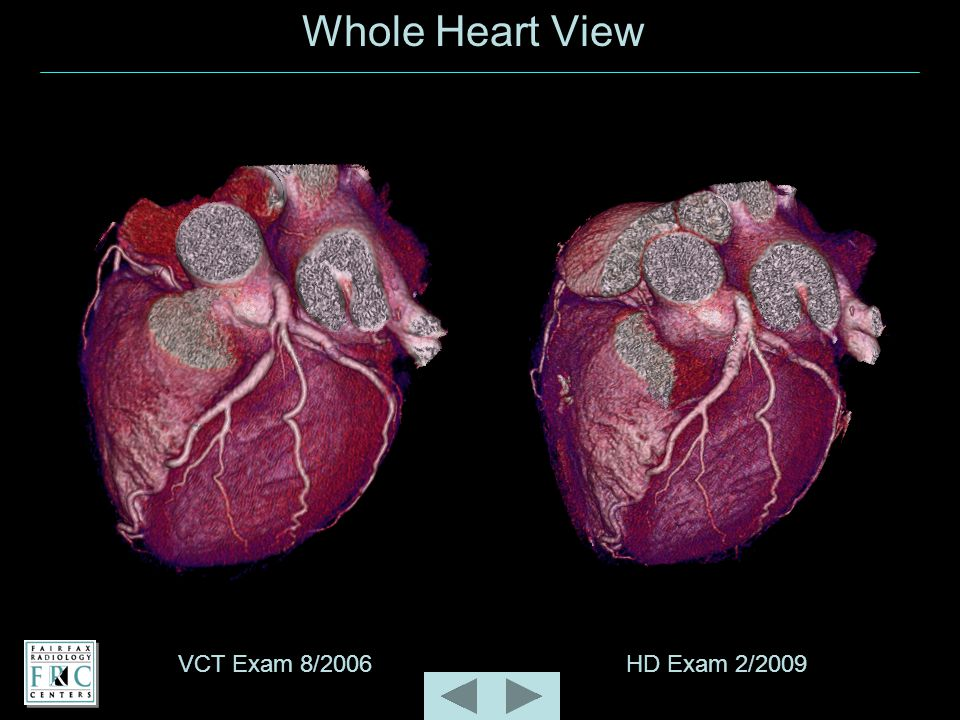 Whole Heart View VCT Exam 8/2006HD Exam 2/2009