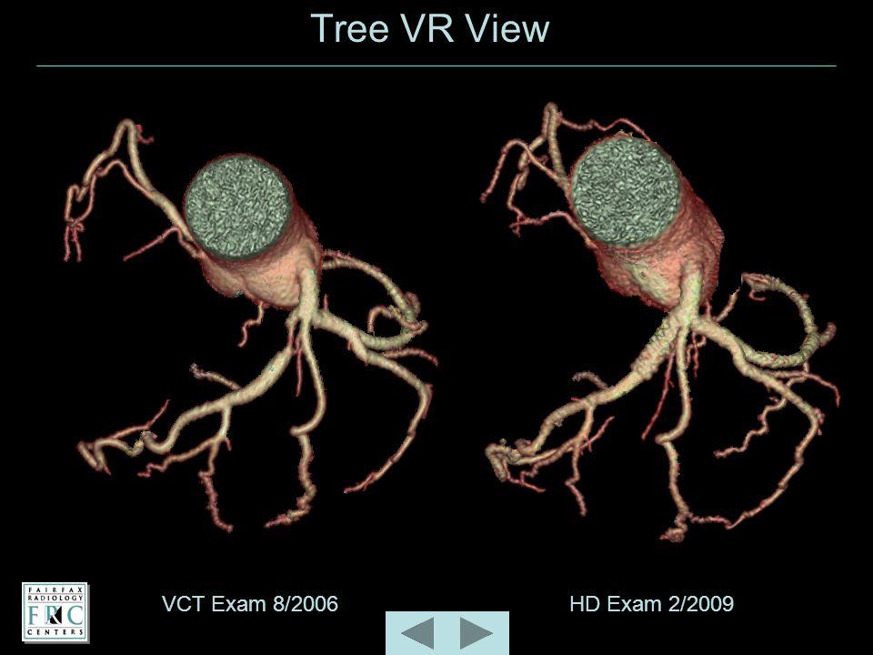 Tree VR View VCT Exam 8/2006HD Exam 2/2009