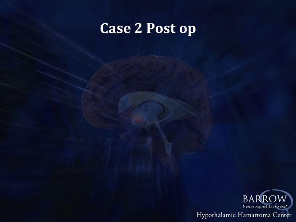 Case 2 Post op