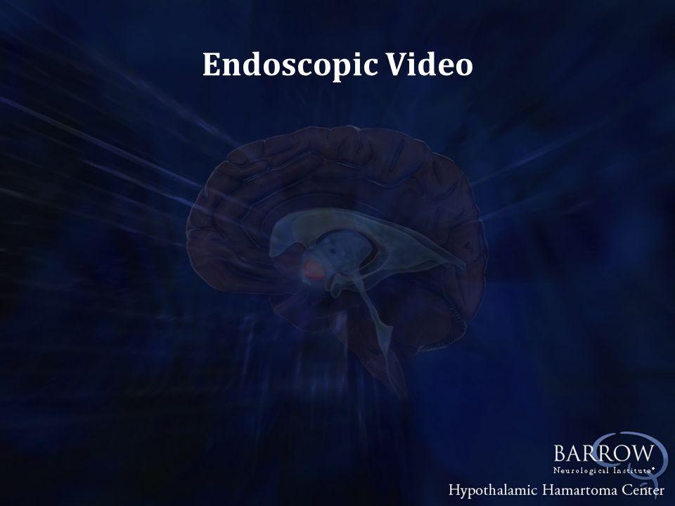 Endoscopic Video