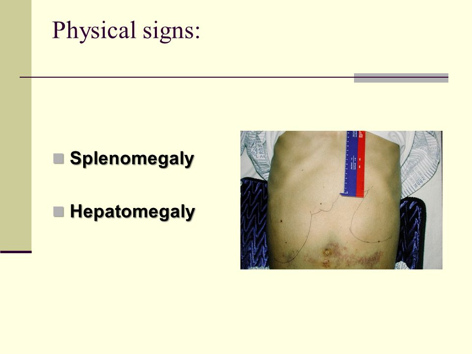 Physical signs: Splenomegaly Splenomegaly Hepatomegaly Hepatomegaly
