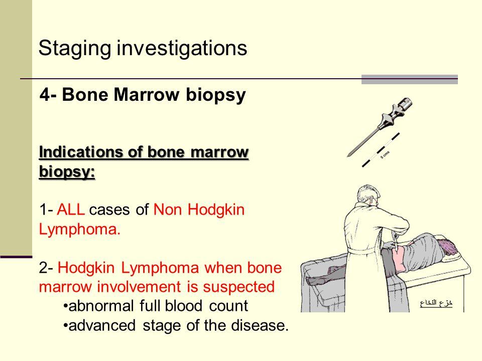 Staging investigations 4- Bone Marrow biopsy Indications of bone marrow biopsy: 1- ALL cases of Non Hodgkin Lymphoma. 2- Hodgkin Lymphoma when bone ma