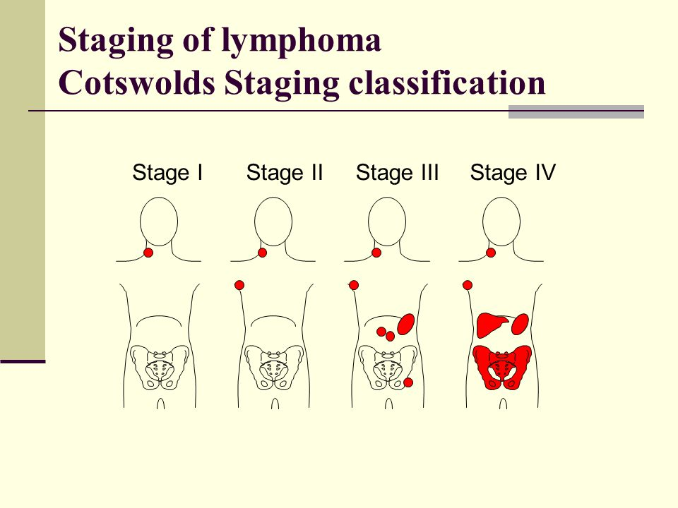 Stage IStage IIStage IIIStage IV Staging of lymphoma Cotswolds Staging classification
