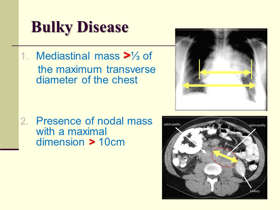 Bulky Disease > 1. Mediastinal mass > ⅓ of the maximum transverse diameter of the chest > 2. Presence of nodal mass with a maximal dimension > 10cm