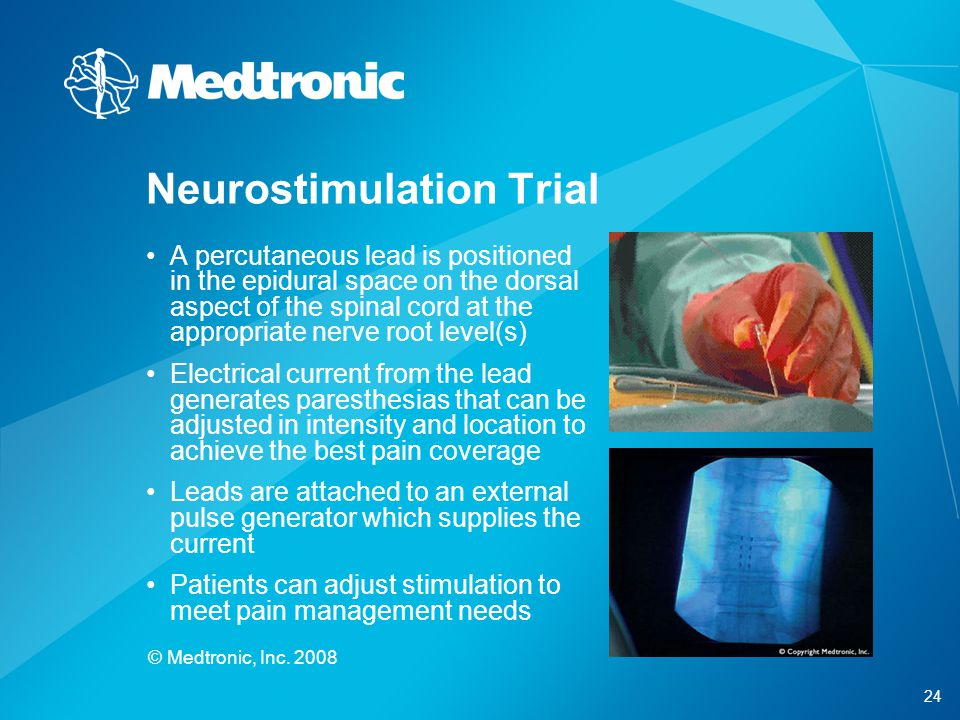 24 © Medtronic, Inc. 2008 A percutaneous lead is positioned in the epidural space on the dorsal aspect of the spinal cord at the appropriate nerve roo