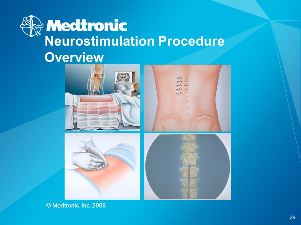 26 © Medtronic, Inc. 2008 Neurostimulation Procedure Overview