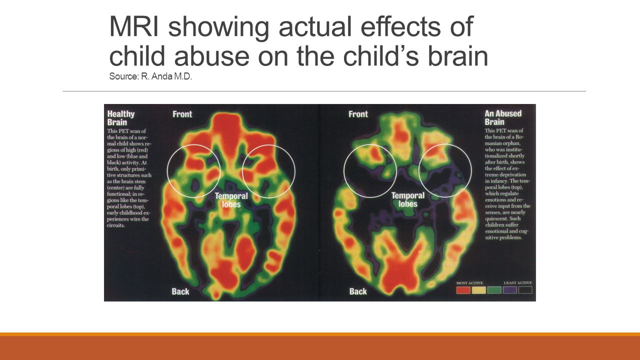 MRI showing actual effects of child abuse on the child's brain Source: R. Anda M.D.