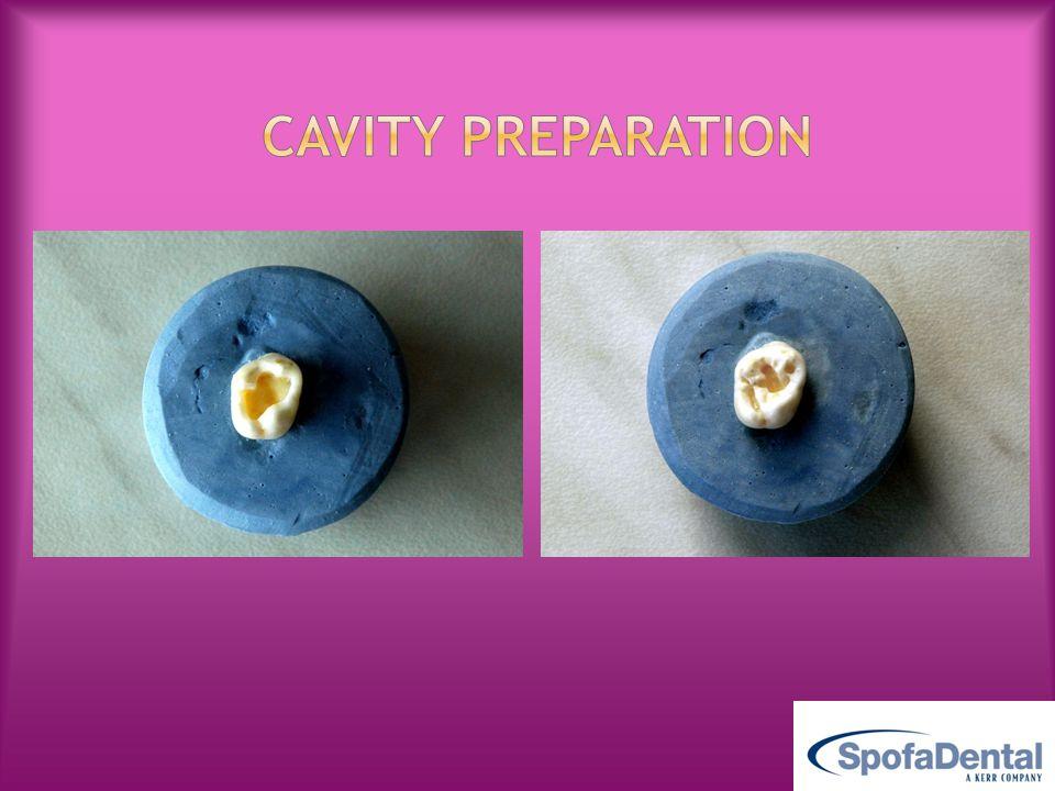 do not over-dry dentin!do not over-dry dentin.