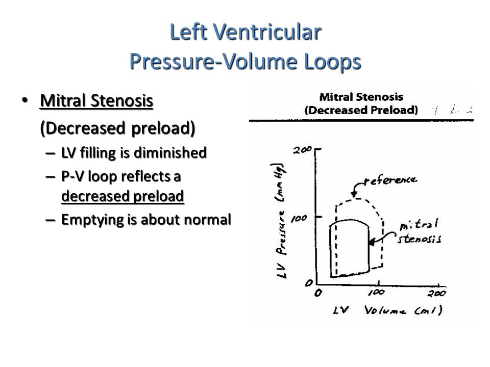 Left Ventricular Pressure-Volume Loops Mitral Stenosis Mitral Stenosis (Decreased preload) – LV filling is diminished – P-V loop reflects a decreased