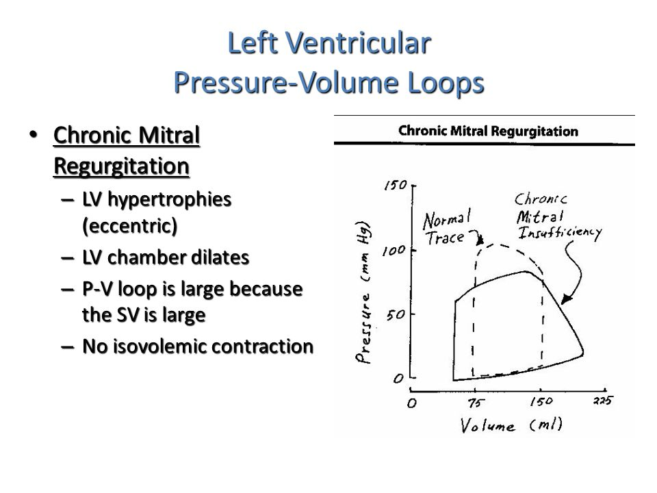 Left Ventricular Pressure-Volume Loops Chronic Mitral Regurgitation Chronic Mitral Regurgitation – LV hypertrophies (eccentric) – LV chamber dilates –