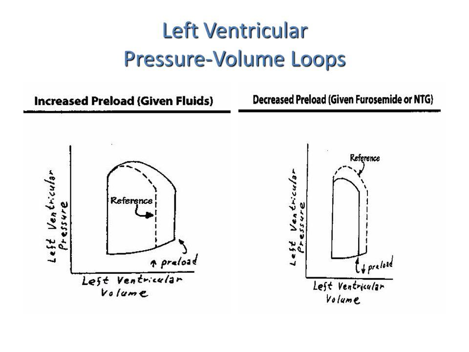 Cardiac tamponade Cardiac tamponade – Unique loop