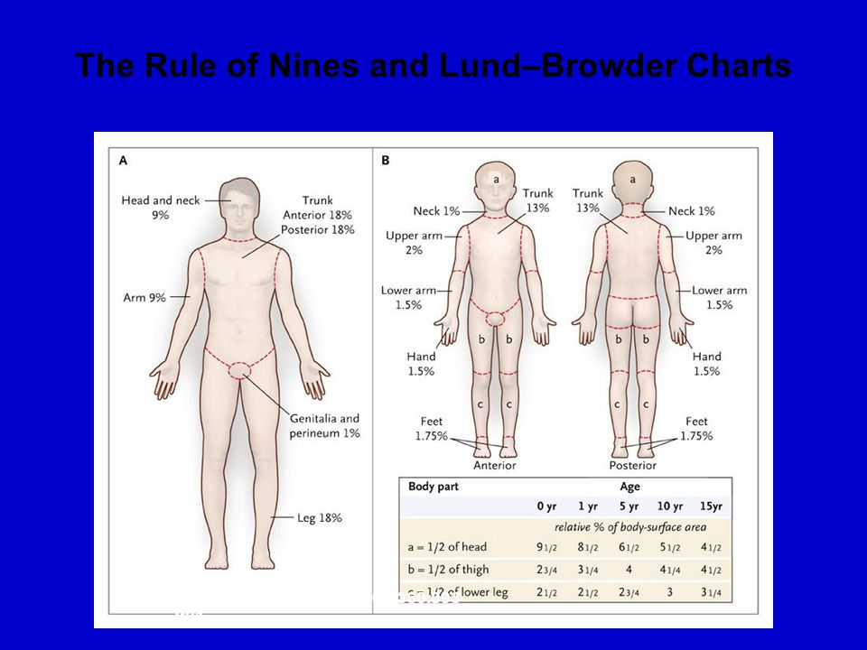 The Rule of Nines and Lund–Browder Charts Orgill D. N Engl J Med 2009;360:893- 901