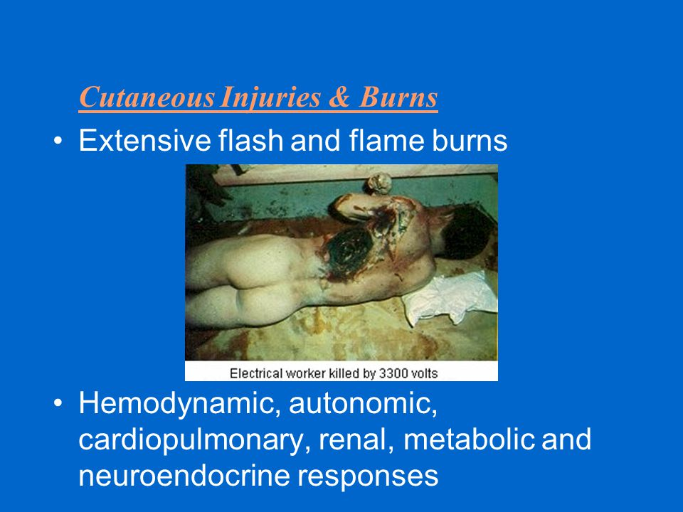 Cutaneous Injuries & Burns Extensive flash and flame burns Hemodynamic, autonomic, cardiopulmonary, renal, metabolic and neuroendocrine responses