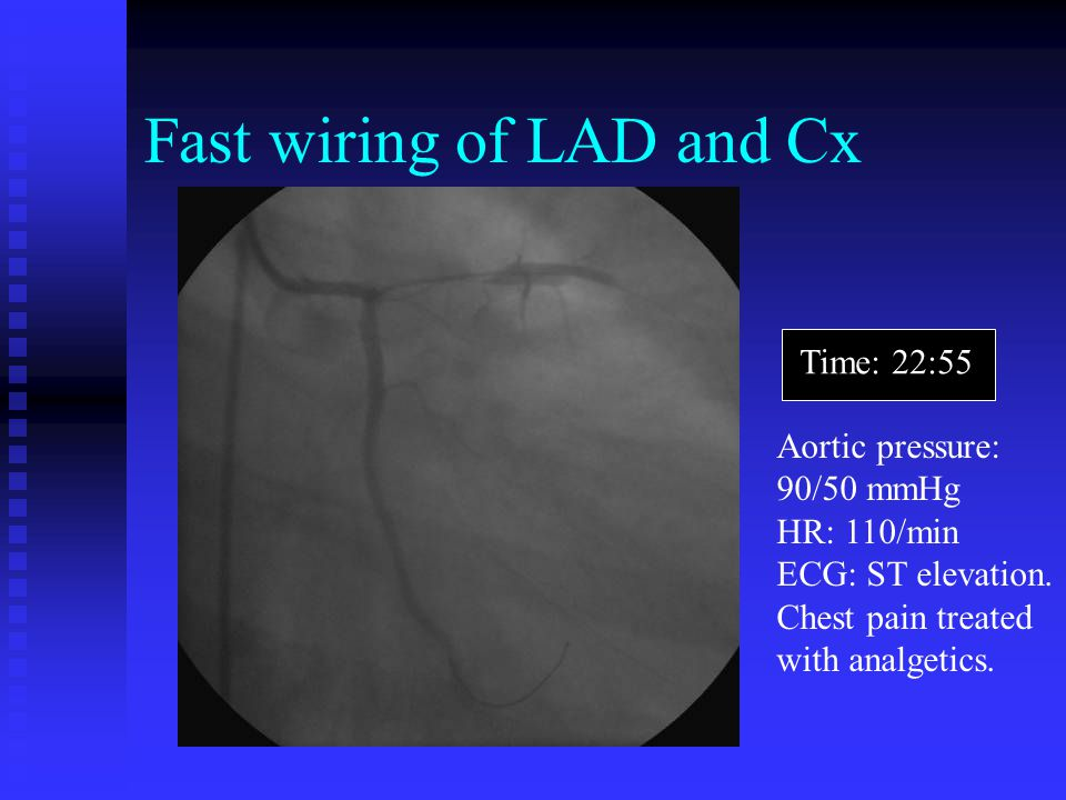 Fast wiring of LAD and Cx Time: 22:55 Aortic pressure: 90/50 mmHg HR: 110/min ECG: ST elevation. Chest pain treated with analgetics.