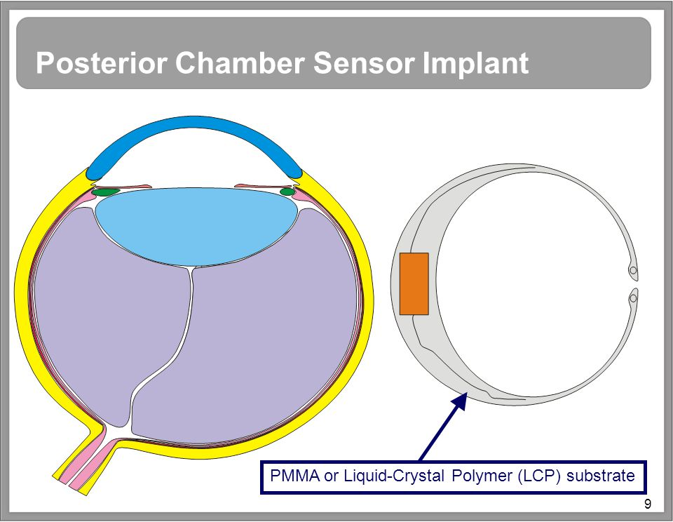 9 Posterior Chamber Sensor Implant PMMA or Liquid-Crystal Polymer (LCP) substrate