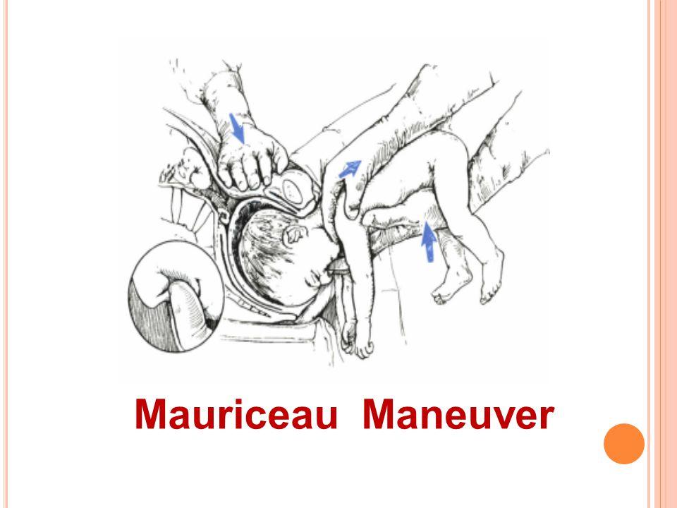 Mauriceau Maneuver