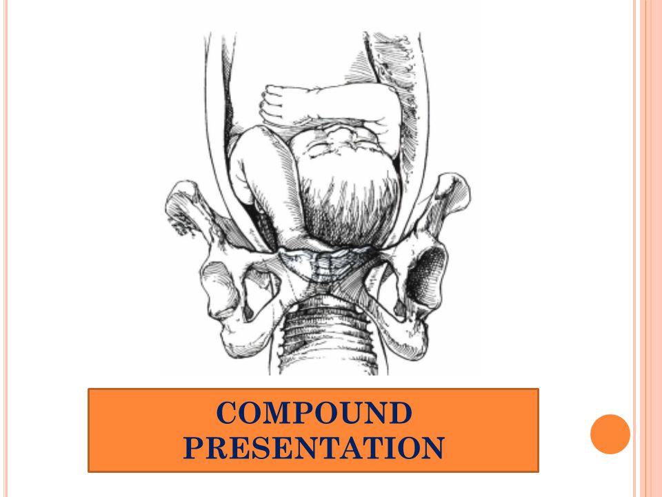 COMPOUND PRESENTATION