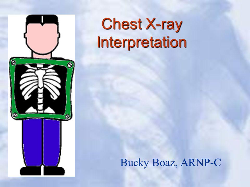 Chest X-ray Interpretation Bucky Boaz, ARNP-C