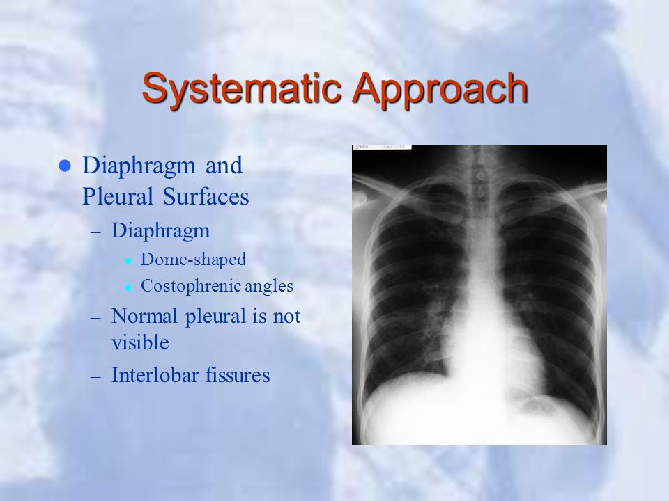 Systematic Approach Diaphragm and Pleural Surfaces – Diaphragm Dome-shaped Costophrenic angles – Normal pleural is not visible – Interlobar fissures