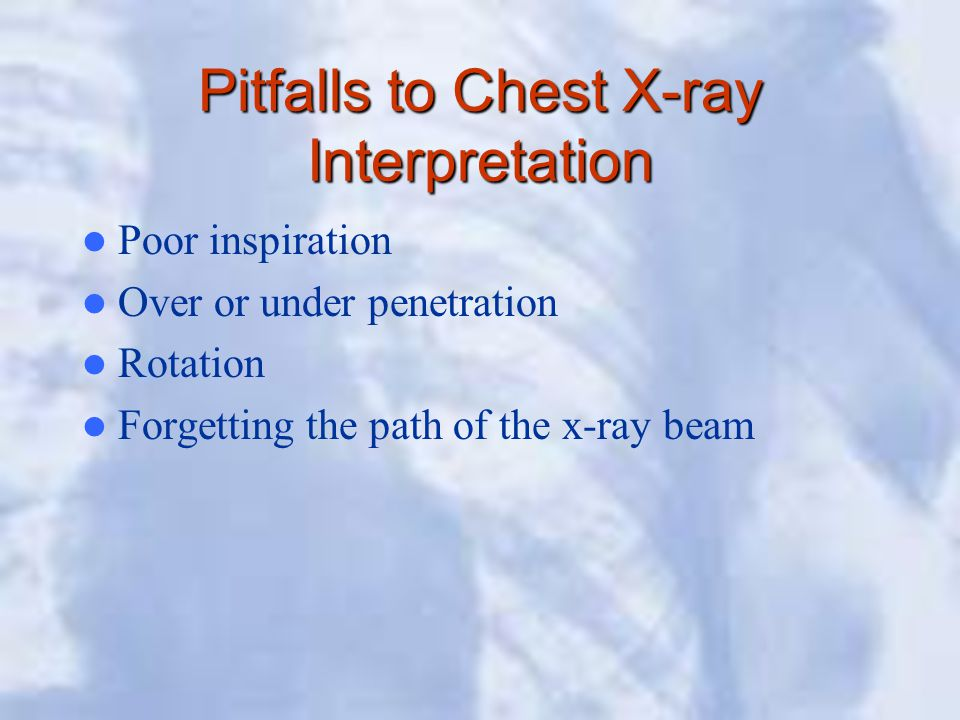 Pitfalls to Chest X-ray Interpretation Poor inspiration Over or under penetration Rotation Forgetting the path of the x-ray beam
