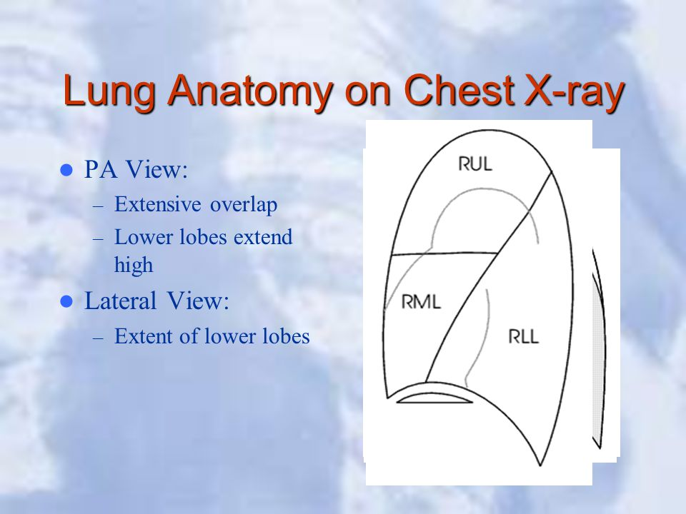 Lung Anatomy on Chest X-ray PA View: – Extensive overlap – Lower lobes extend high Lateral View: – Extent of lower lobes