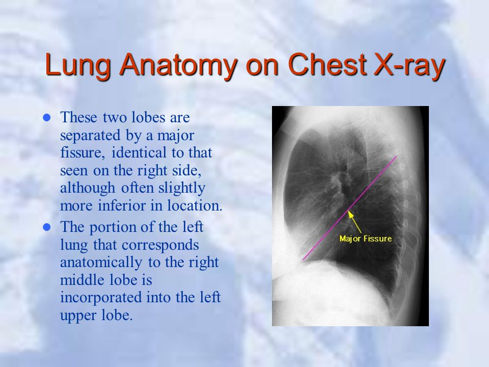 Lung Anatomy on Chest X-ray These two lobes are separated by a major fissure, identical to that seen on the right side, although often slightly more i