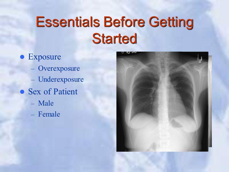 Essentials Before Getting Started Exposure – Overexposure – Underexposure Sex of Patient – Male – Female