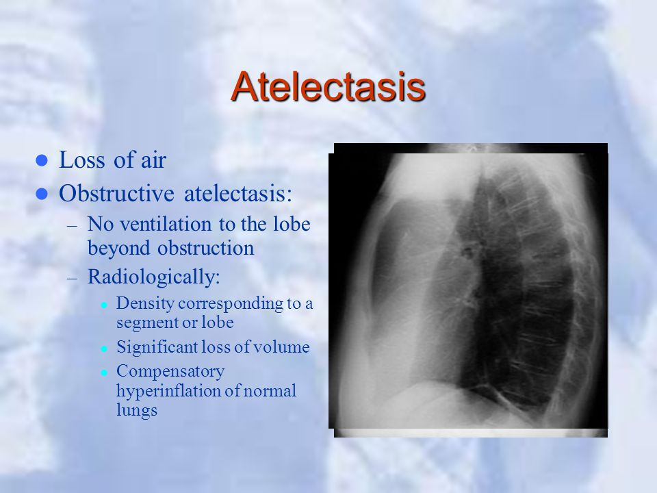 Atelectasis Loss of air Obstructive atelectasis: – No ventilation to the lobe beyond obstruction – Radiologically: Density corresponding to a segment