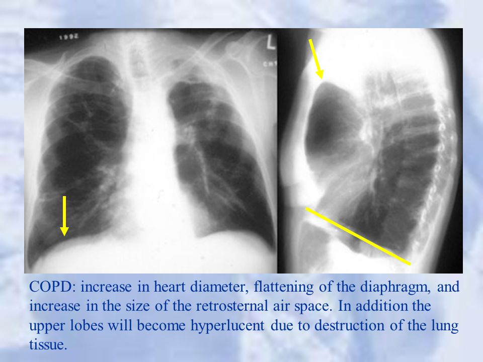 COPD: increase in heart diameter, flattening of the diaphragm, and increase in the size of the retrosternal air space. In addition the upper lobes wil