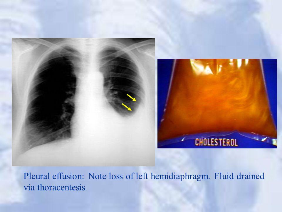 Pleural effusion: Note loss of left hemidiaphragm. Fluid drained via thoracentesis
