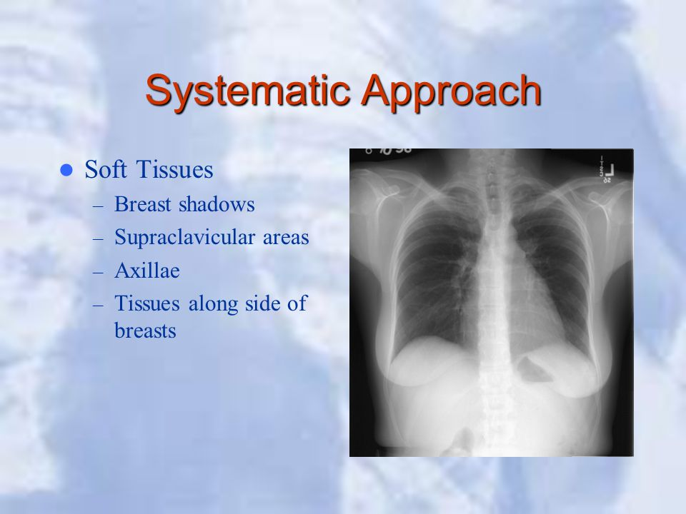 Systematic Approach Soft Tissues – Breast shadows – Supraclavicular areas – Axillae – Tissues along side of breasts