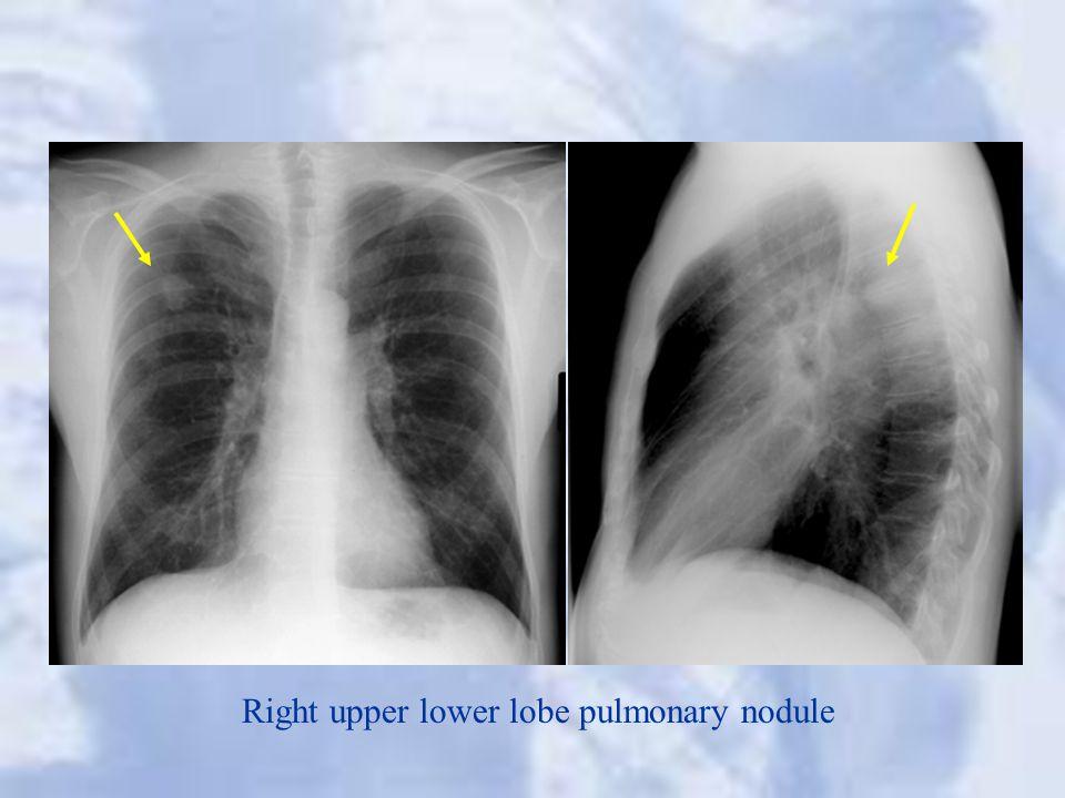 Right upper lower lobe pulmonary nodule