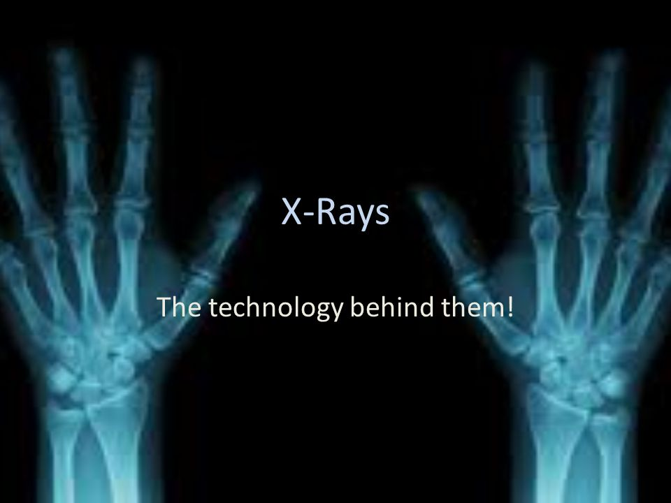 The EM used The EM used for x ray machines is x-rays.
