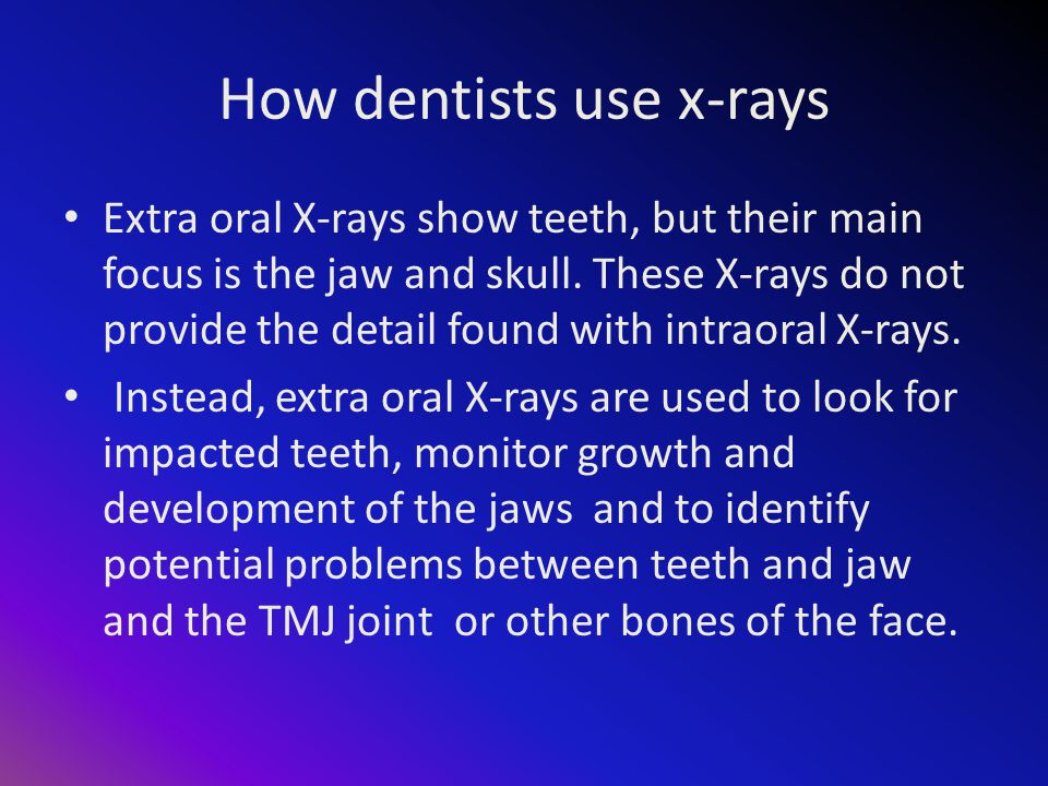 How dentists use x-rays Extra oral X-rays show teeth, but their main focus is the jaw and skull.