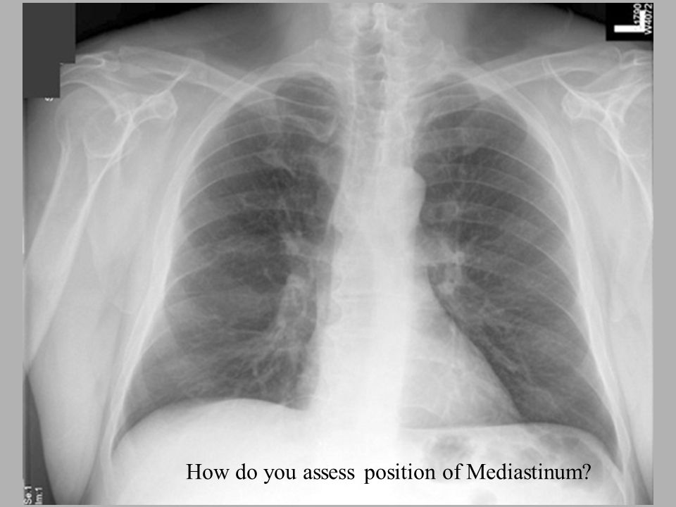 How do you assess position of Mediastinum?