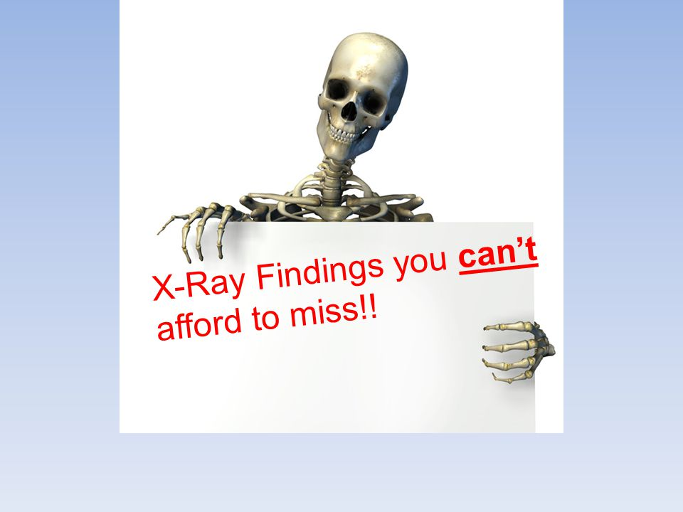 X-Ray Findings you can't afford to miss!!