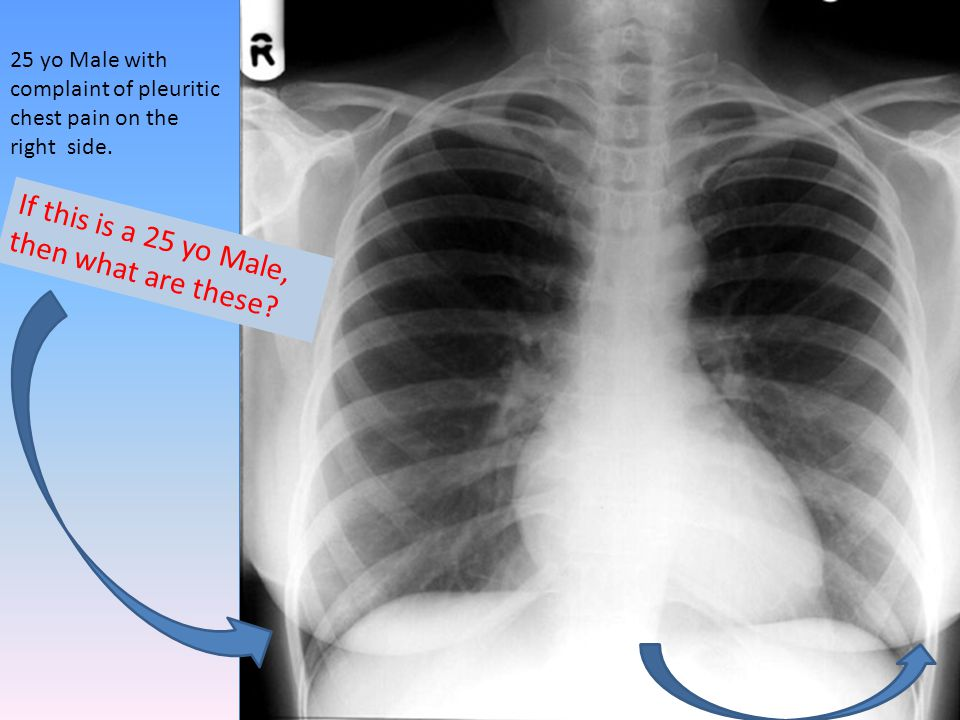 25 yo Male with complaint of pleuritic chest pain on the right side.