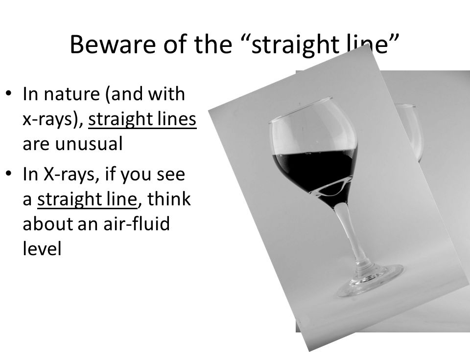 Beware of the straight line In nature (and with x-rays), straight lines are unusual In X-rays, if you see a straight line, think about an air-fluid level