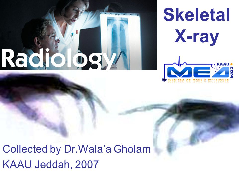 Skeletal X-ray Collected by Dr.Wala'a Gholam KAAU Jeddah, 2007
