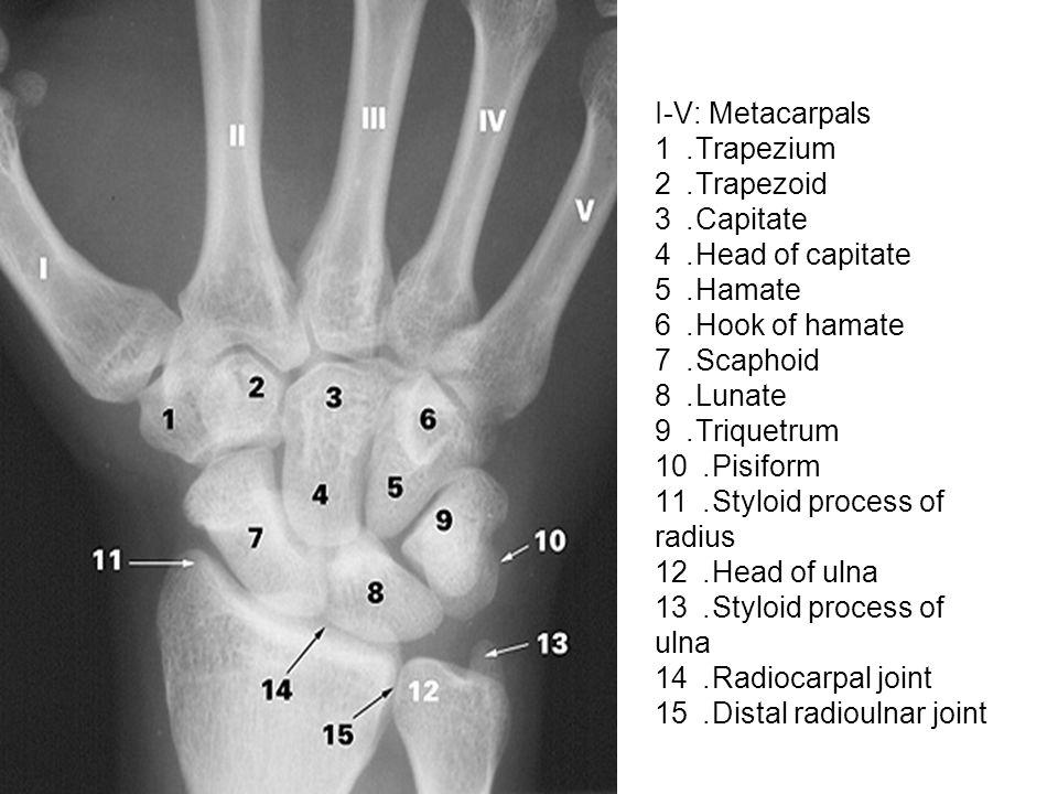 I-V: Metacarpals 1. Trapezium 2. Trapezoid 3. Capitate 4. Head of capitate 5. Hamate 6. Hook of hamate 7. Scaphoid 8. Lunate 9. Triquetrum 10. Pisifor