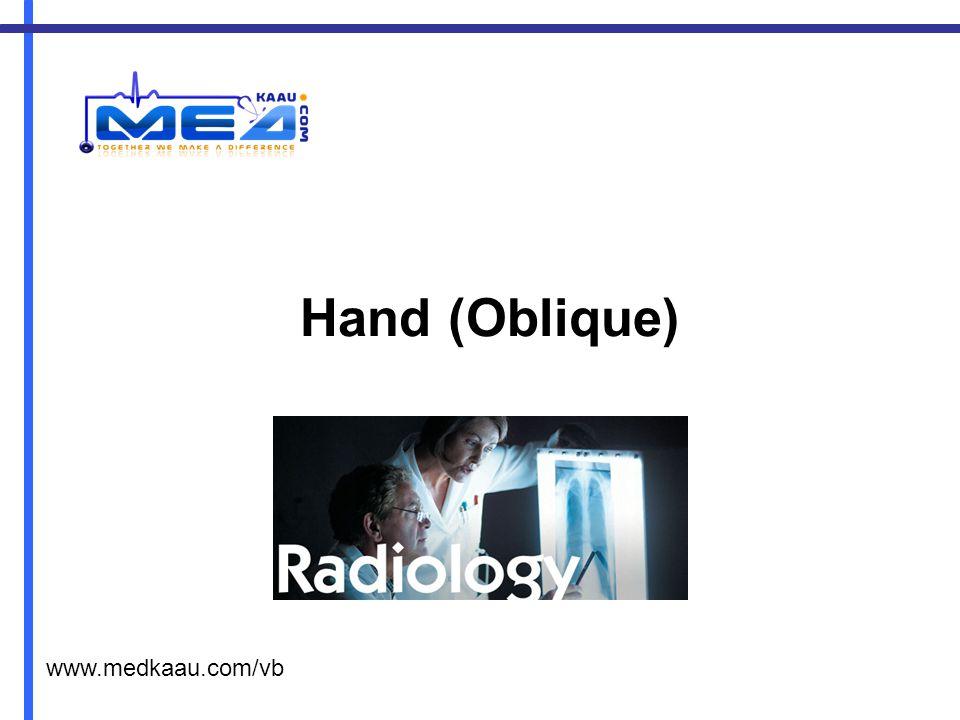 Hand (Oblique) www.medkaau.com/vb