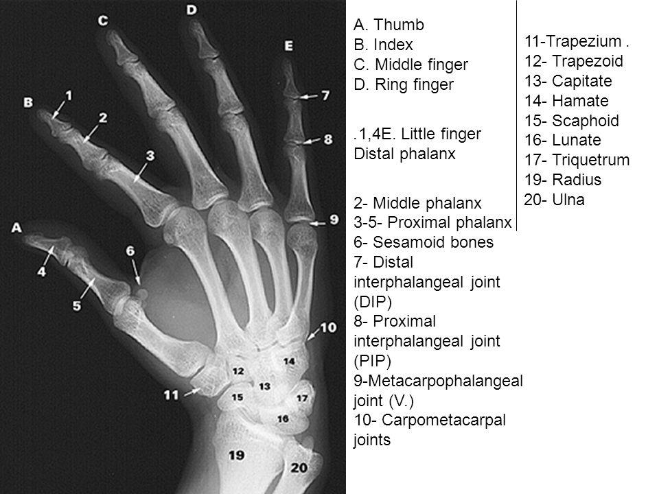 A. Thumb B. Index C. Middle finger D. Ring finger E. Little finger1,4. Distal phalanx 2- Middle phalanx 3-5- Proximal phalanx 6- Sesamoid bones 7- Dis